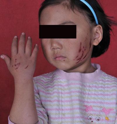 被摔女童_广州女教师猛摔4岁女童获刑6年 被质疑量刑轻(图)